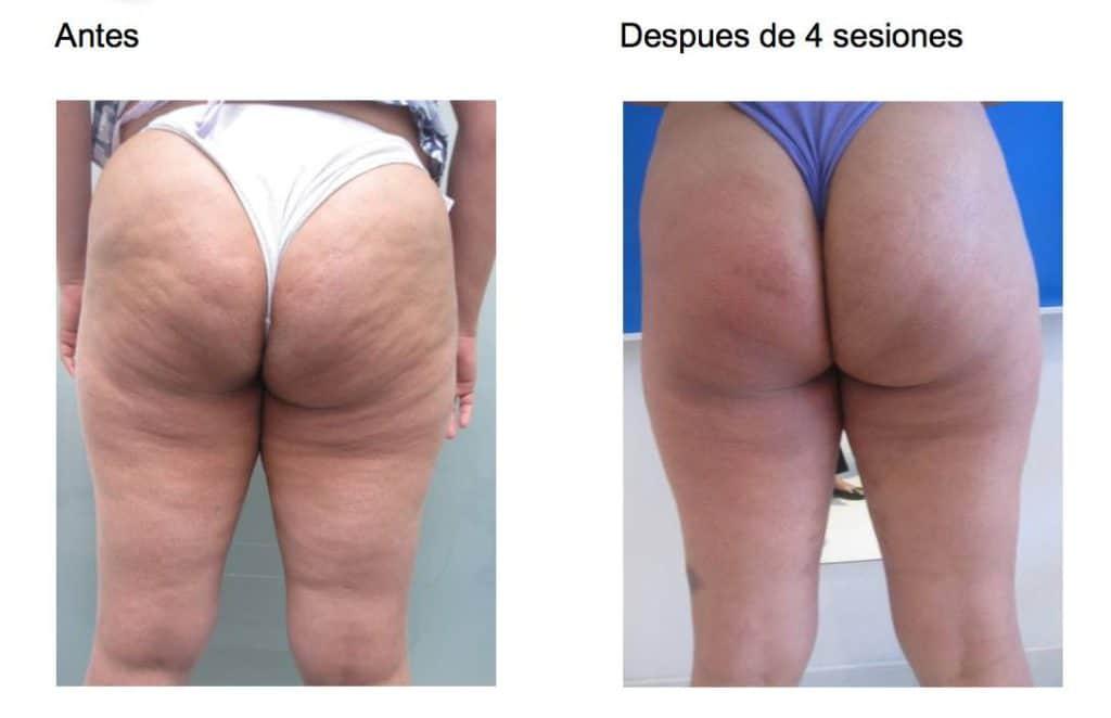 dermoplastia antes y despues